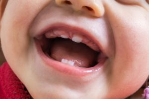 Close-up of view of baby teeth